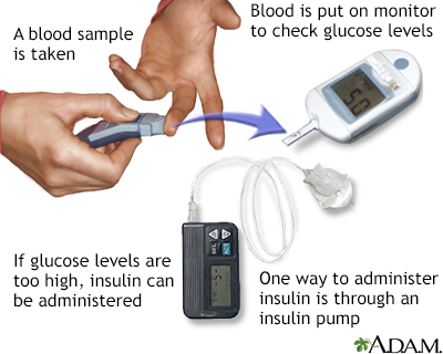 machine to check sugar levels