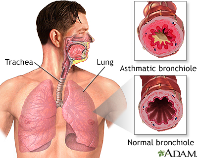 Symptoms Of Heartburn In Newborns Babies