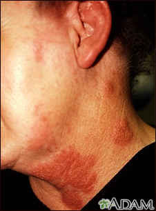 Shingles Behind Ear http://nymethodist.adam.com/content.aspx?productId=10&pid=10&gid=000082